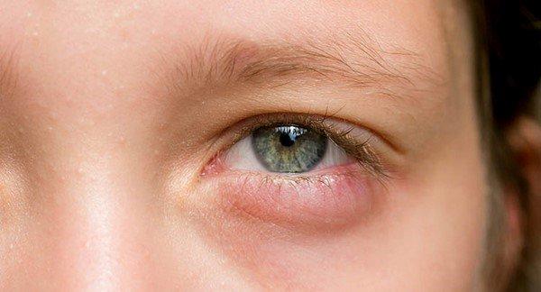 Những vấn đề cần quan tâm khi bị chấn thương mắt
